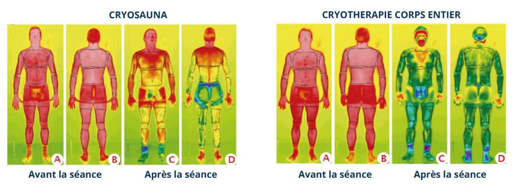 cryosauna vs cryotherapie corps entier